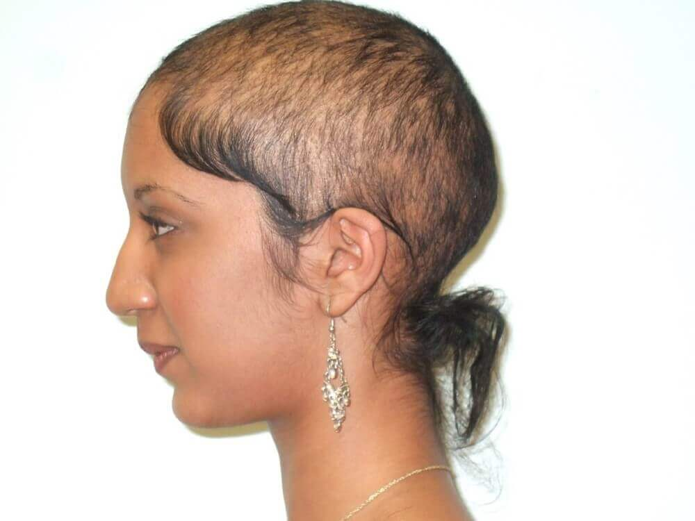 woman with hair loss