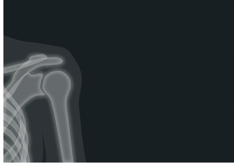x-ray picture of a sholder